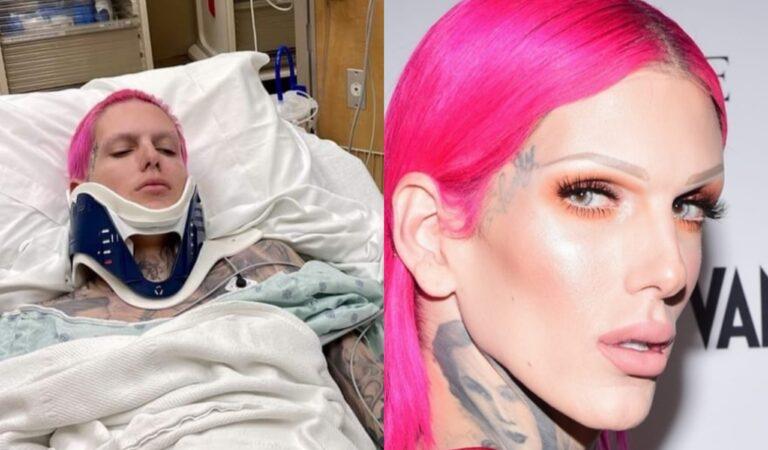 Influencer Jeffree Star hospitalizado tras terrible accidente, reporta TMZ